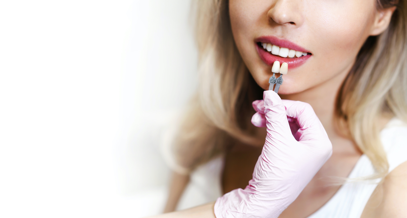 Dental Veneers in Southwest Houston: What Are They and Why Might You Need Them?