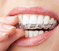 Invisalign at Alegria Dental Care
